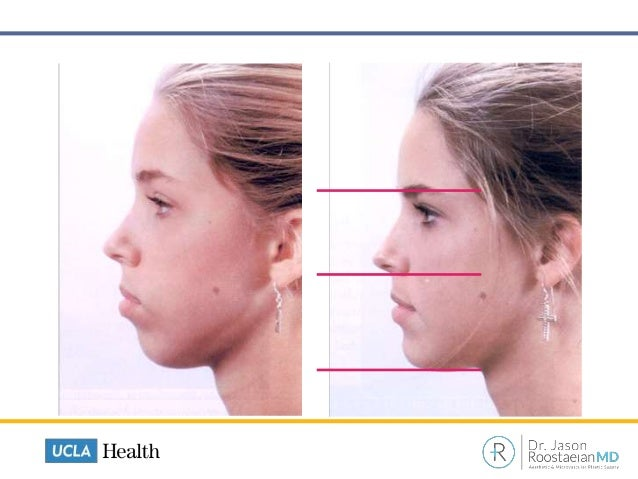 The Modern Approach To Rhinoplasty: What Every Patient