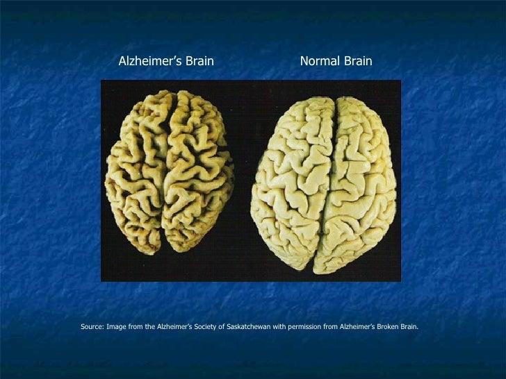 Alzheimer's Brain                                        Normal BrainSource: Image from the Alzheimer's Society of Saskatc...