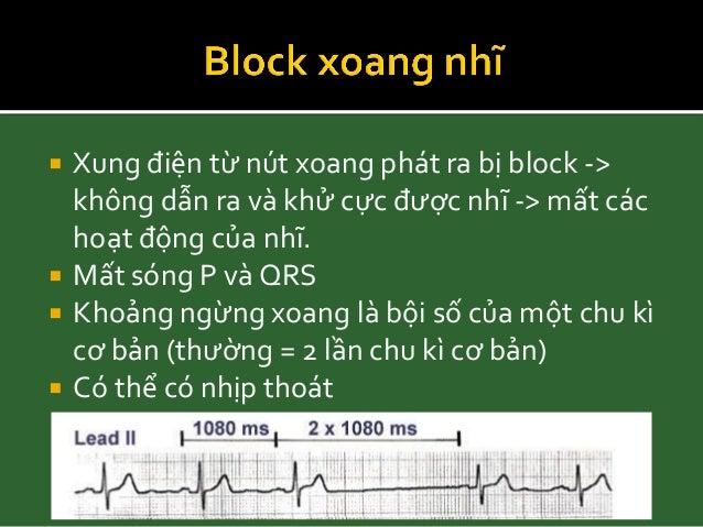 Mất sóng P và QRS Có thể có nhịp thoát Bradyarrhythmias, Hurts's the heart