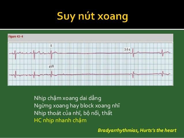 - ≥ 2 sóng P được dẫn - PR cố định - 1 sóng P bị block BAV, ECG basic and bedside