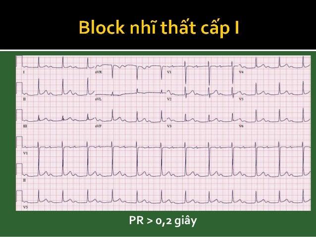 • BAV I + block 2 phân nhánh: - BAV I + RBBB + LAFB - BAV I + RBBB + LPFB - BAV I + LBBB • BAV II + block 2 phân nhánh - B...