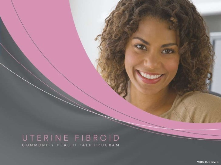 What are Uterine Fibroids?<br />Benign (Noncancerous) tumors that develop in the wall of the uterus<br />Can cause problem...