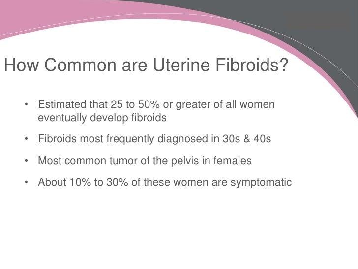 Fibroids linked to estrogen