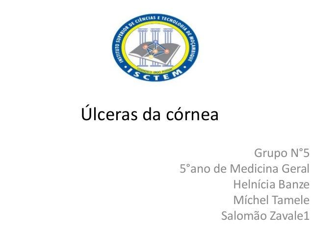 Úlceras da córnea Grupo N°5 5°ano de Medicina Geral Helnícia Banze Míchel Tamele Salomão Zavale1