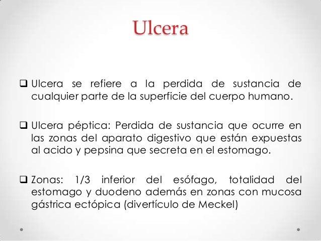 Factores que actúan en la integridad de la mucosa Factores agresivos:  Acido  Pepsina  Helicobacter pylori  AINE  Tab...