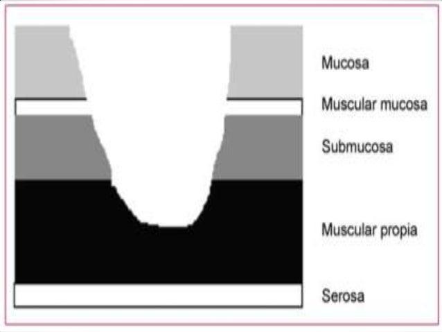Clasificación Según localización:  Gástrica  Duodenal  Esofágica  Marginal o de boca anastomotica.  En un divertículo...