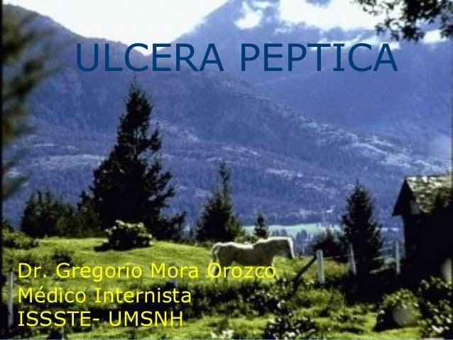 ULCERA PEPTICA Dr. Gregorio Mora Orozco Médico Internista ISSSTE- UMSNH