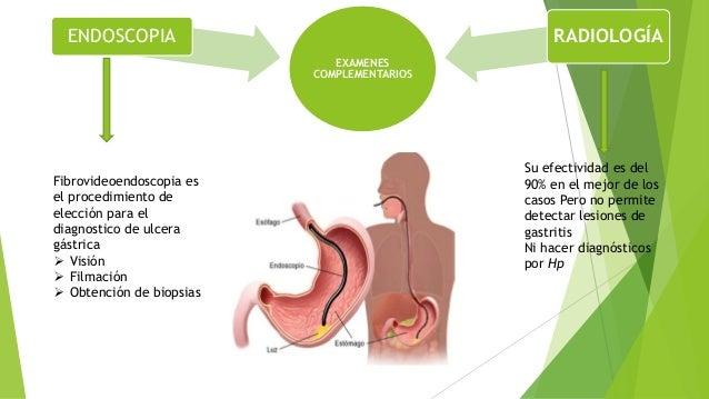 Complicaciones  Gastrorragia: 10-15% de pacientes  Perforación: Caracterizado por dolor intenso en la región epigástrica...