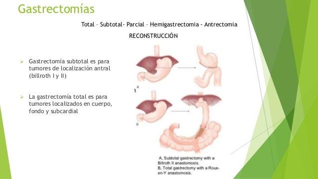 Esofagoyeyunostomia en Y de Roux