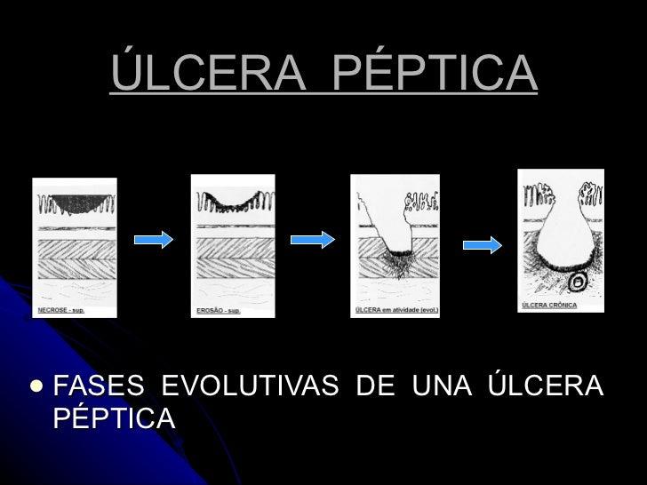 ÚLCERA  PÉPTICA <ul><li>FASES  EVOLUTIVAS  DE  UNA  ÚLCERA  PÉPTICA </li></ul>