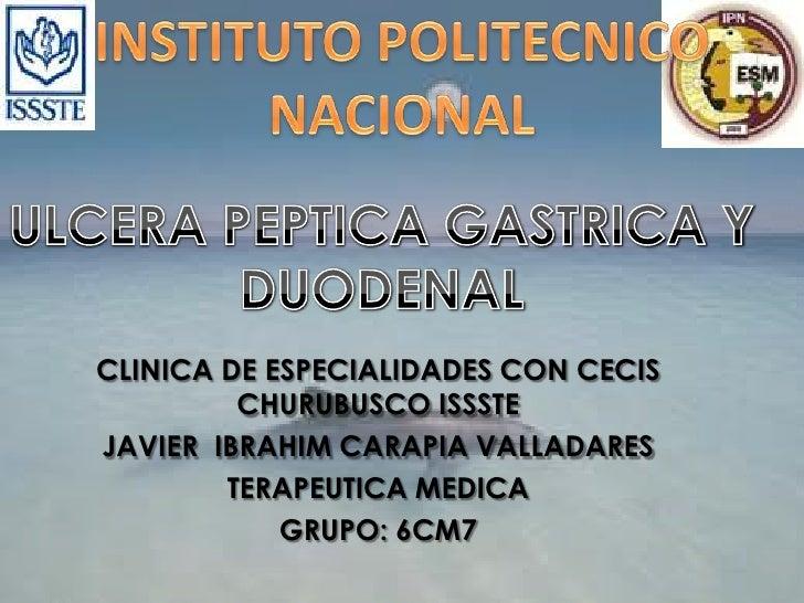 INSTITUTO POLITECNICO NACIONAL<br />ULCERA PEPTICA GASTRICA Y DUODENAL  <br />CLINICA DE ESPECIALIDADES CON CECIS CHURUBUS...