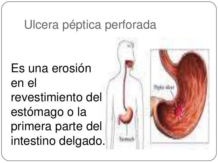 Ulcera peptica perforada Slide 2