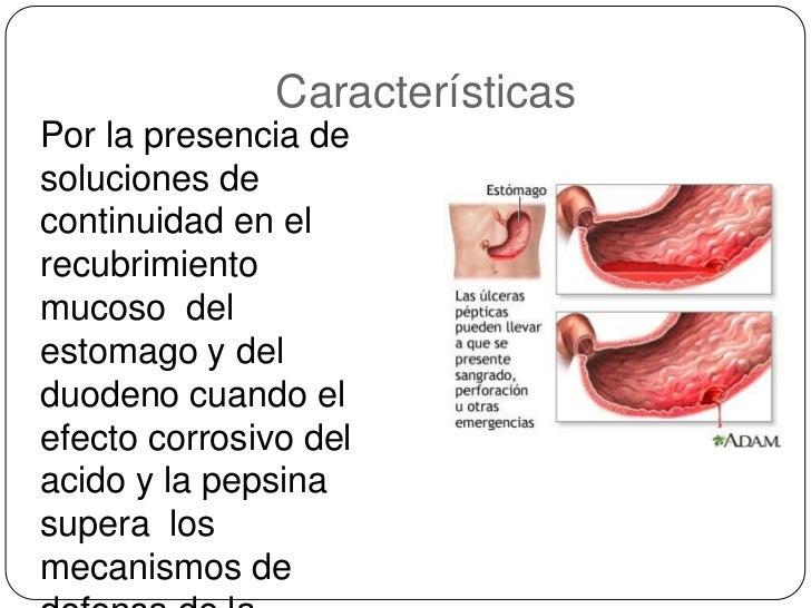 Ulcera peptica perforada Slide 3