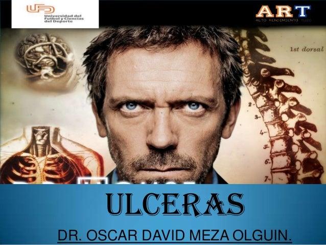 ULCERASDR. OSCAR DAVID MEZA OLGUIN.