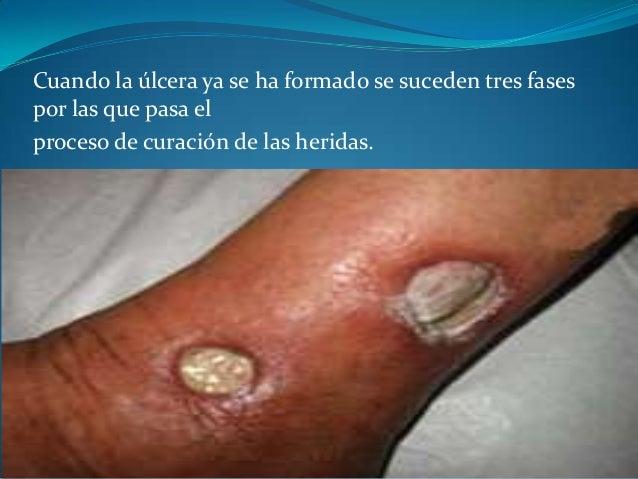 ULCERAS Slide 3