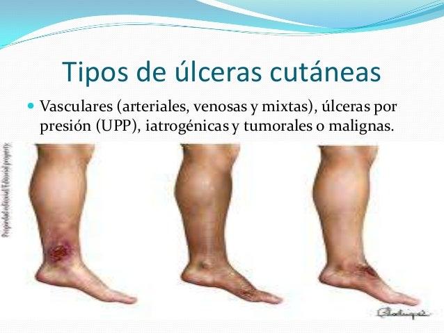 Resultado de imagen para tipos de ulcera cutanea