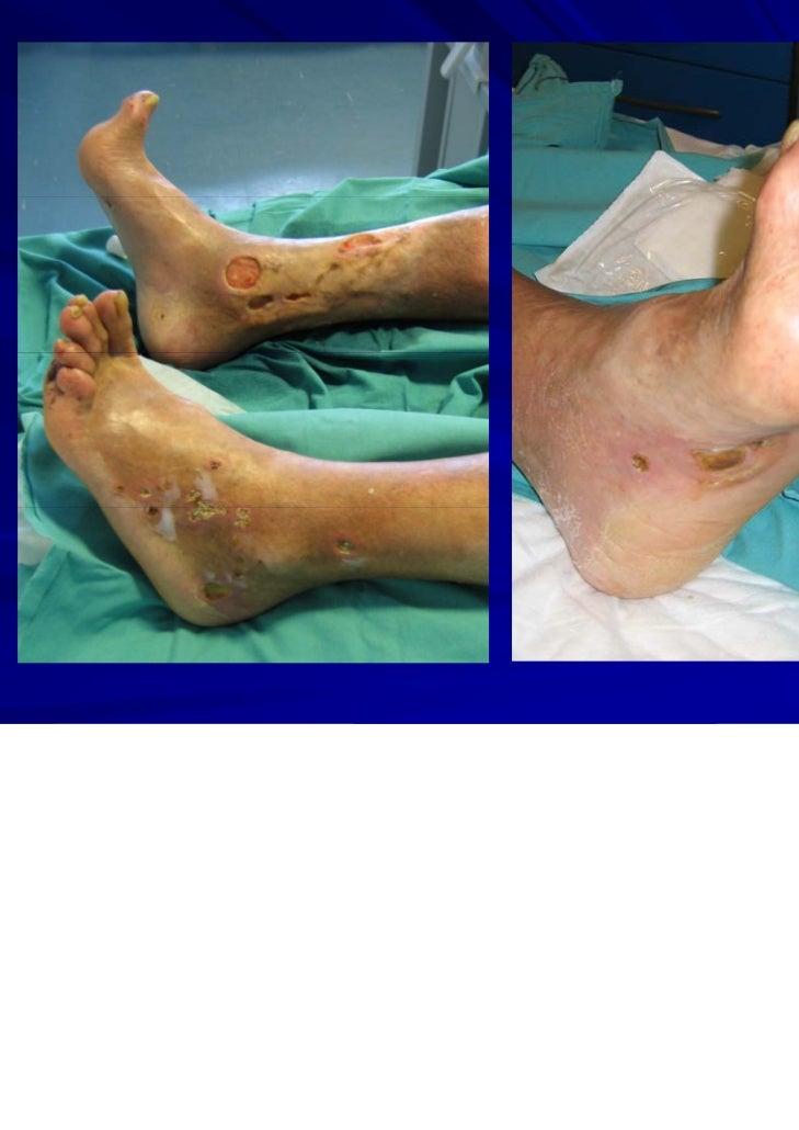 La tromboflebitis en los pies el tratamiento público