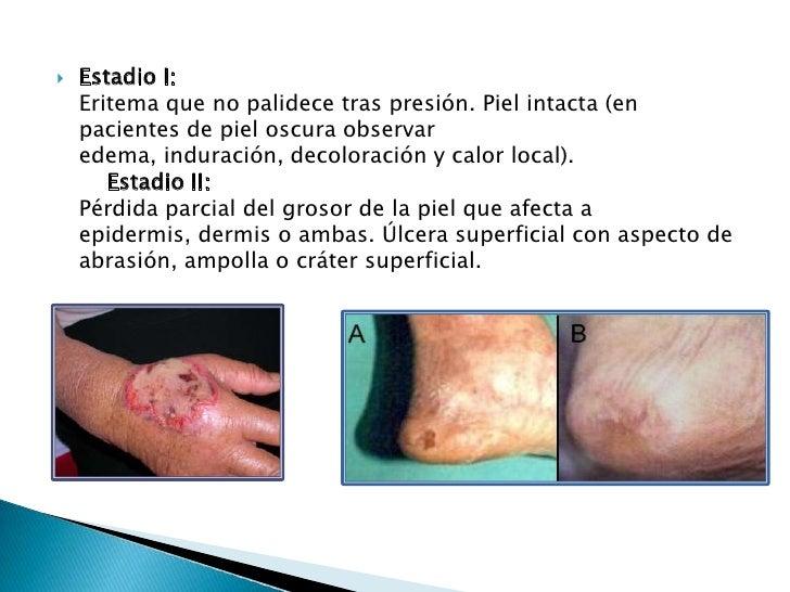 Ulceras por por presion