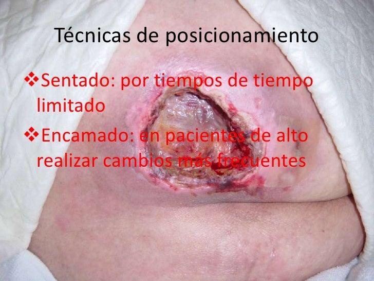 Ulceras por presión (presentación)