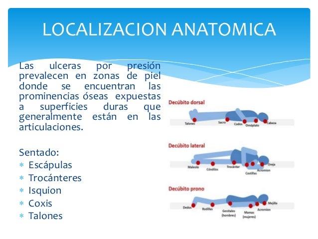 LOCALIZACION ANATOMICA  Las ulceras por presión  prevalecen en zonas de piel  donde se encuentran las  prominencias óseas ...