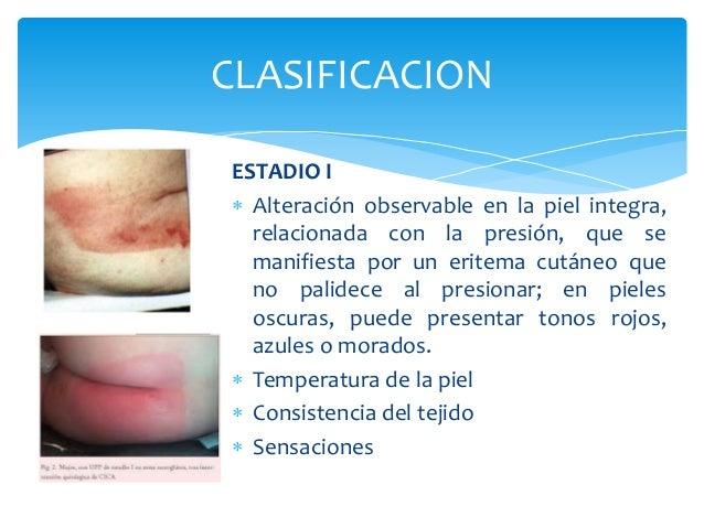 CLASIFICACION  ESTADIO I   Alteración observable en la piel integra,  relacionada con la presión, que se  manifiesta por ...