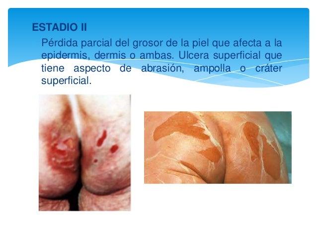 ESTADIO II   Pérdida parcial del grosor de la piel que afecta a la  epidermis, dermis o ambas. Ulcera superficial que  ti...