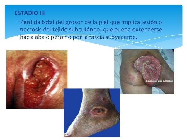 ESTADIO III   Pérdida total del grosor de la piel que implica lesión o  necrosis del tejido subcutáneo, que puede extende...