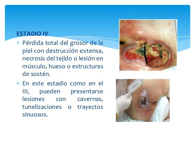ESTADIO IV   Pérdida total del grosor de la  piel con destrucción extensa,  necrosis del tejido o lesión en  músculo, hue...