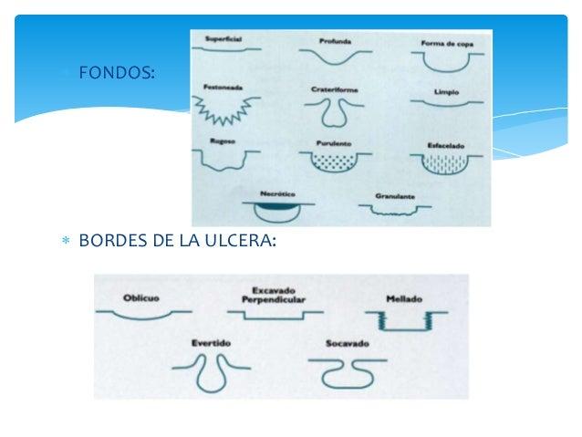  FONDOS:   BORDES DE LA ULCERA: