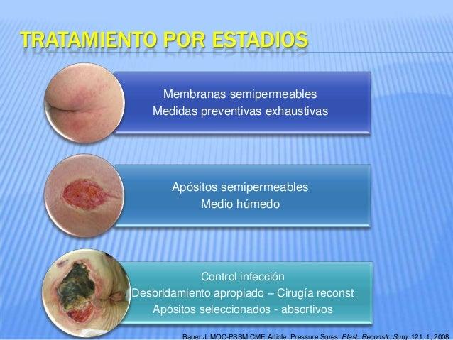 Ulceras Por Presion Tratamiento Por El Cirujano Plástico