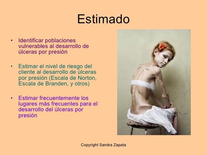 Ulceras Por Presion Sandra