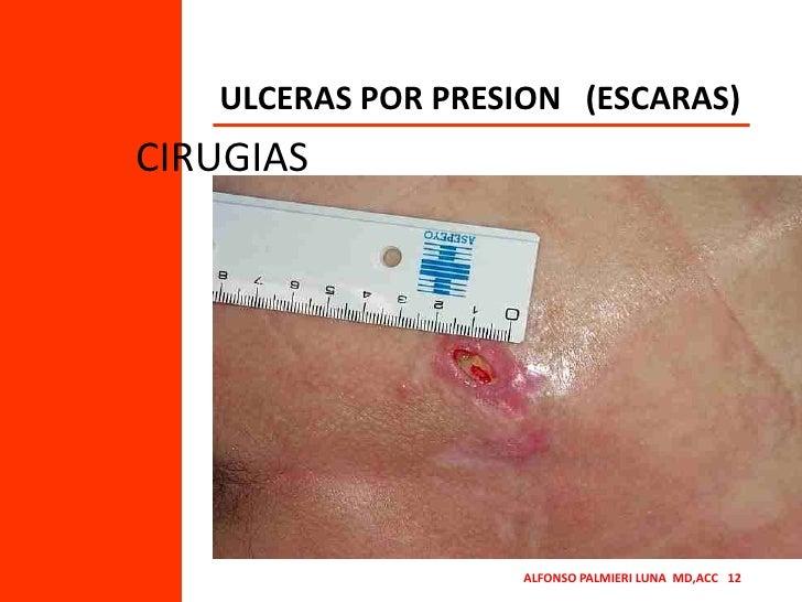 ULCERAS POR PRESION   (ESCARAS)<br />CIRUGIAS<br />ALFONSO PALMIERI LUNA  MD,ACC   12<br />