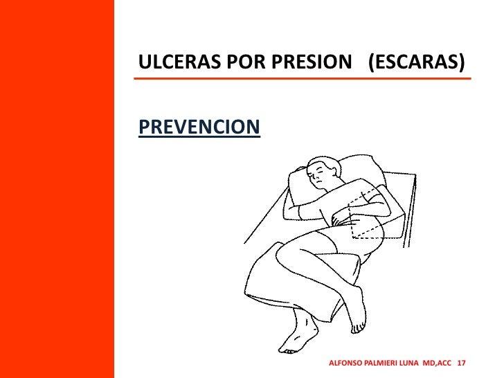 ULCERAS POR PRESION   (ESCARAS)<br />PREVENCION<br />ALFONSO PALMIERI LUNA  MD,ACC   17<br />