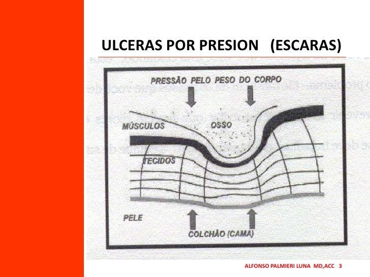 ULCERAS POR PRESION   (ESCARAS)<br />ALFONSO PALMIERI LUNA  MD,ACC   3<br />