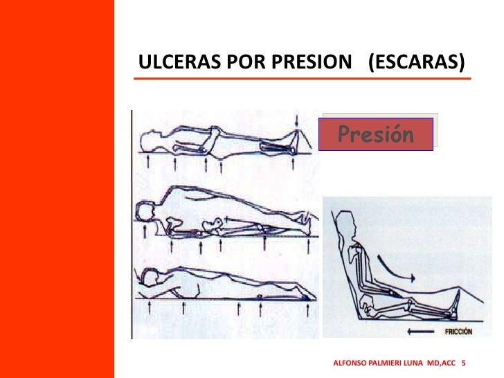 ULCERAS POR PRESION   (ESCARAS)<br />Presión<br />ALFONSO PALMIERI LUNA  MD,ACC   5<br />