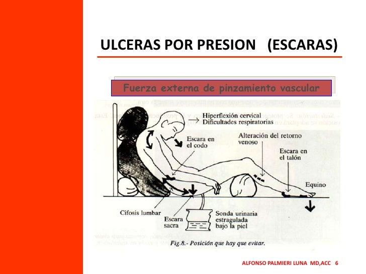 ULCERAS POR PRESION   (ESCARAS)<br />Fuerza externa de pinzamiento vascular<br />ALFONSO PALMIERI LUNA  MD,ACC   6<br />