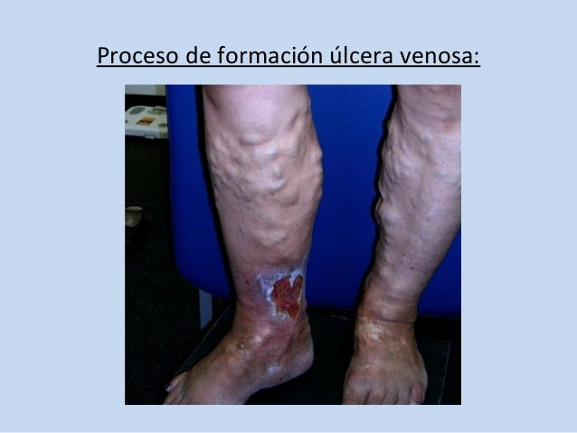 La psoriasis a los lactantes de la foto la fase inicial de la foto