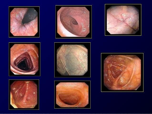 Differential Diagnosis  1- Crohn colitis.  2- Infectious colitis.  3- Ischemic colitis. Acute, painful, self limited, loca...