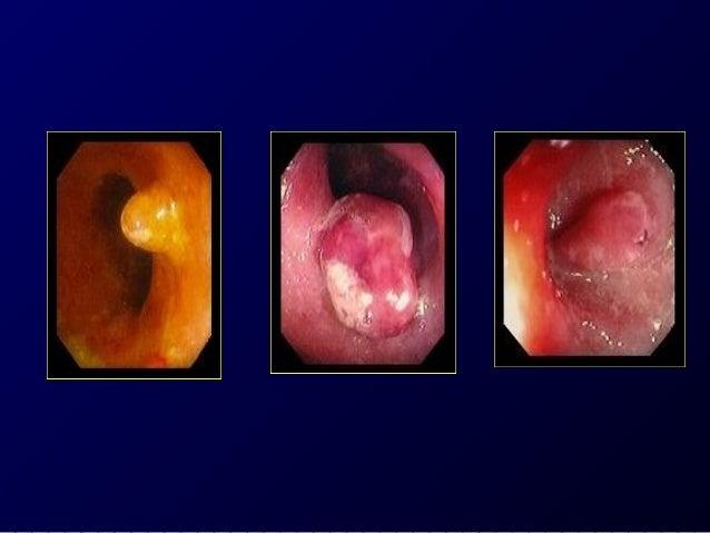 Infectious illnesses mimicking  IBD