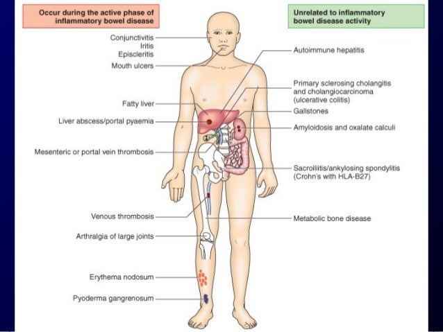Pouchitis  - Occurs in patients who have undergone an IPAA.  - The etiology is unknown bacterial flora may play a  role.  ...
