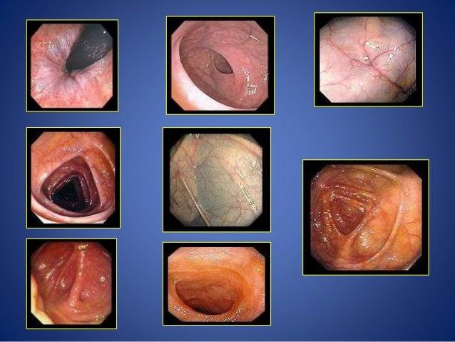 Mercaptopurine 50 Mg Ulcerative Colitis