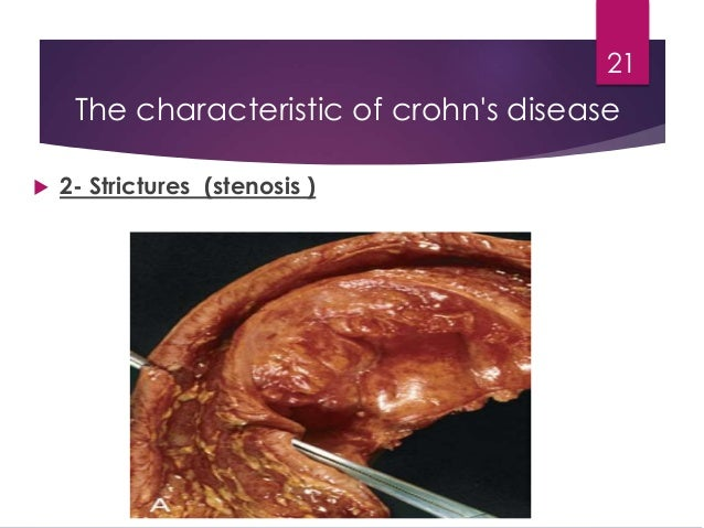 the characteristics of crohns illness an inflammatory bowel disease Inflammatory bowel disease - crohns  conditions collectively known as inflammatory bowel disease  pre-illness weight and/or recent weight changes is.