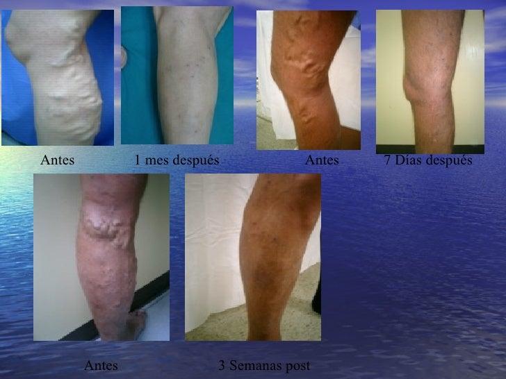 La reconstitución del pie después de la desaparición de la vena
