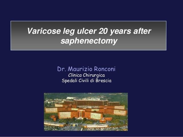 Varicose leg ulcer 20 years after  saphenectomy  Dr. Maurizio Ronconi  Clinica Chirurgica  Spedali Civili di Brescia