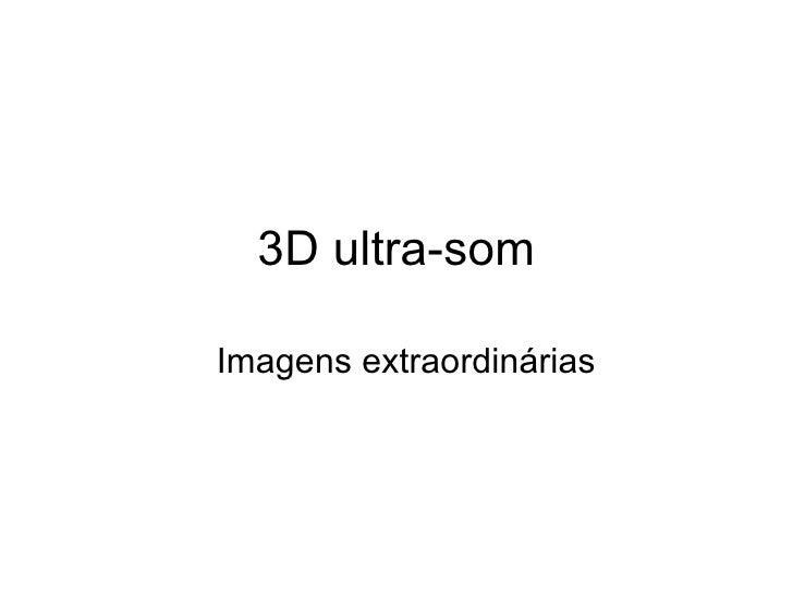 3D  ultra-som Imagens extraordinárias