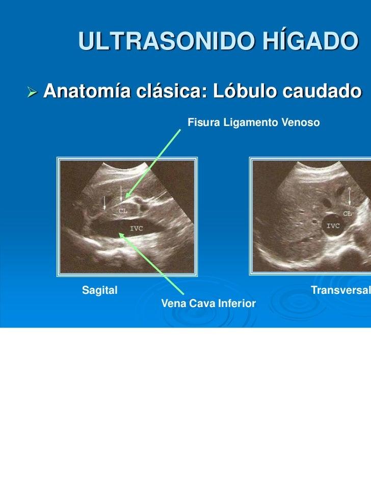 Ultrasonido hìgado y vìas biliares