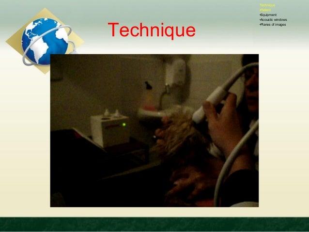 Ultrasonography of brain Slide 3