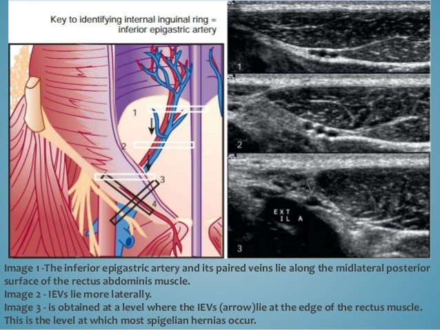 Image 1 -The inferior epigastric artery and its paired veins lie along the midlateral posterior surface of the rectus abdo...