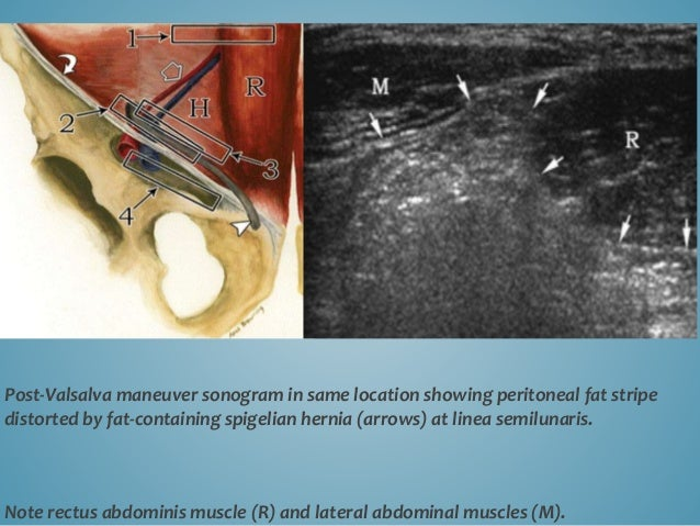 Post-Valsalva maneuver sonogram in same location showing peritoneal fat stripe distorted by fat-containing spigelian herni...