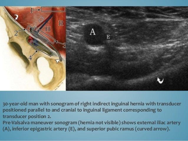 Post-Valsalva maneuver sonogram shows external iliac artery (A), inferior epigastric artery (E), dilated external iliac ve...